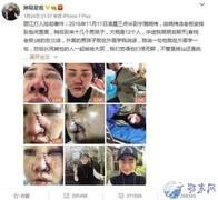 游客丽江被打宣判 被打女子毁容 6名男子获刑