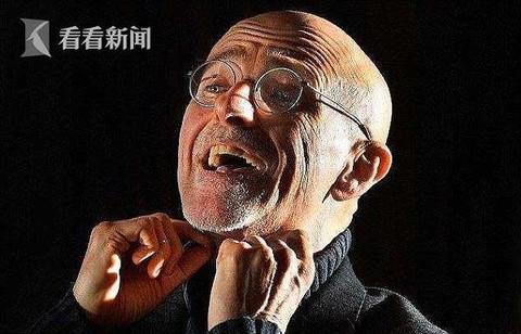 头颅移植手术成功 中国医学教授参与指导 手术18小时