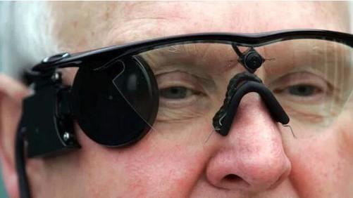 最严重更会失明,但是这问题只影响到眼睛结构,对脑部的视力中心并无