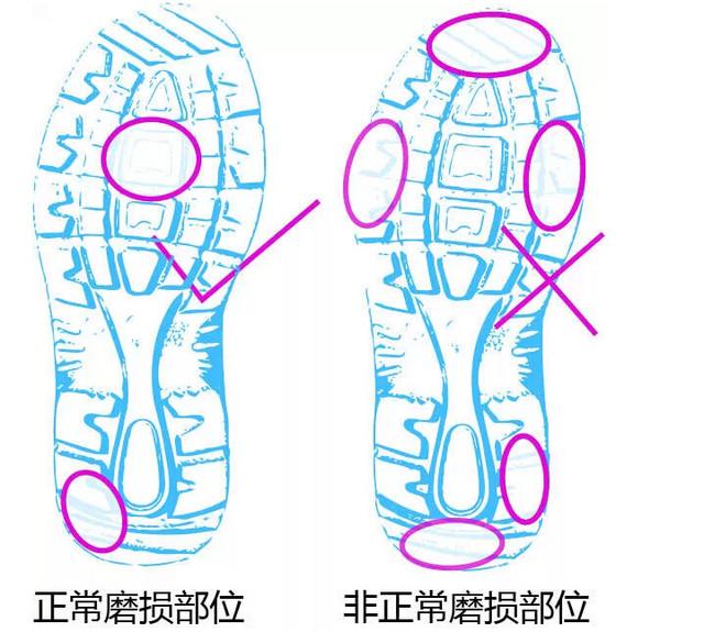 脚型分类图解图片