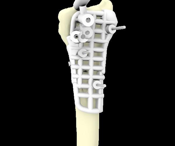 美国3D打印医疗应用新突破 FDA认证通过