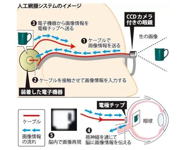失明者重见光明 日本成功研发人工视网膜