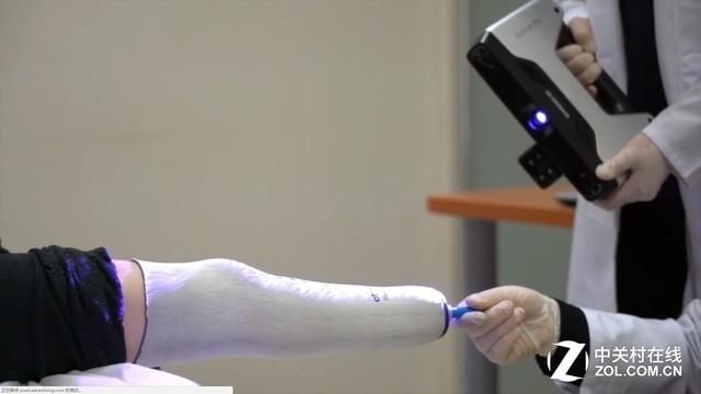3D技术在叙利亚 残疾儿童终于重新站立
