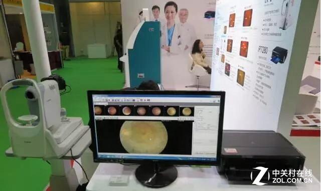 2免散瞳数字眼底照相机的无缝配合-佳能产品亮相第七届国际医疗器