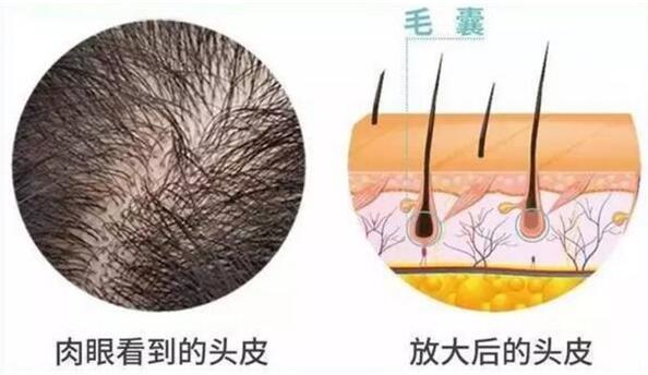 我们要从毛发的形成和特性开始谈起。正常情况下,头皮毛发的数量其实在出生期就已经定型了,大概10万个毛囊,毛囊密度随年龄增加、体表面积增大而减少。新生儿头发密度为1135/cm2,之后逐渐减少,至20-30岁为615/cm2,30-50岁为485/cm2,70-80岁仅仅为435/cm2。因此肉眼就会发现头发稀疏。 毛发生长周期分为生长期、退行期和休止期。头发的生长期平均为3年,退行期为3周,休止期为3个月。其中85%-90%的毛发在生长期。在青春期性激素开始分泌,雄激素促进胡须、腋下和阴部的毛发变粗,因