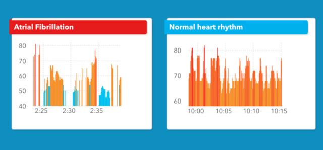 测心率、防中风 Apple Watch越来越健康