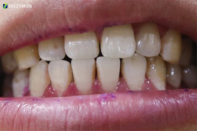 让你的选购不再纠结 10款电动牙刷横评