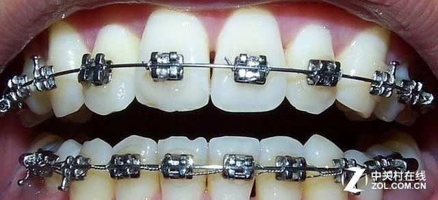 飞利浦声波震动牙刷 正畸者的长期试用
